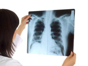 Рентген материалы